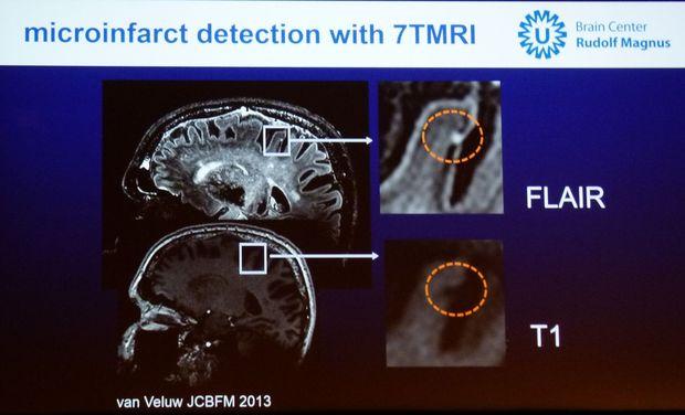 Een nieuwe definitie voor vasculaire cognitieve deficiëntie